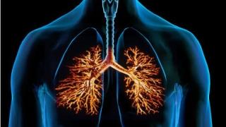 Прегледайте се безплатно за туберкулоза до края на седмицата