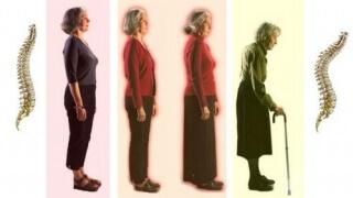 Oтбелязваме Световния ден за борба с остеопорозата